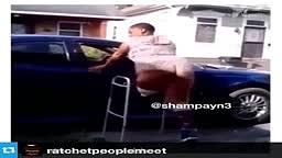 WOW!! Watch this One Legged Girl TWERK Her ASS Off!!!