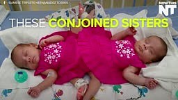These Conjoined Sisters Could Be Separated Soon
