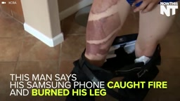 Mans leg CATCHES FIRE after Samsung Galaxy s7 edge phone EXPLODES in his pocket